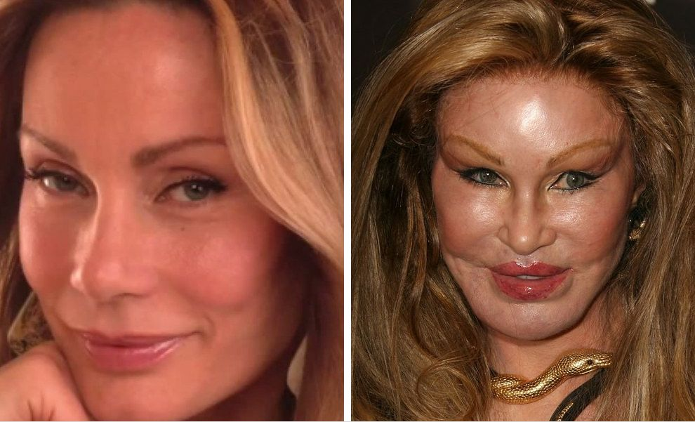 9-Jocelyn-Wildenstein-before-after