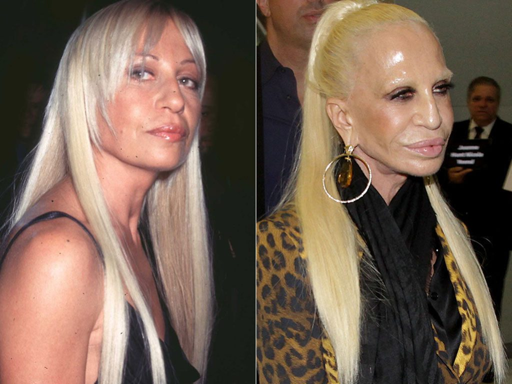 Ugly-Before-After-Donatella-Versace-Plastic-Surgery