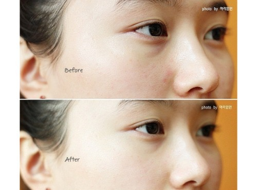 VitaminE5cream_before_after
