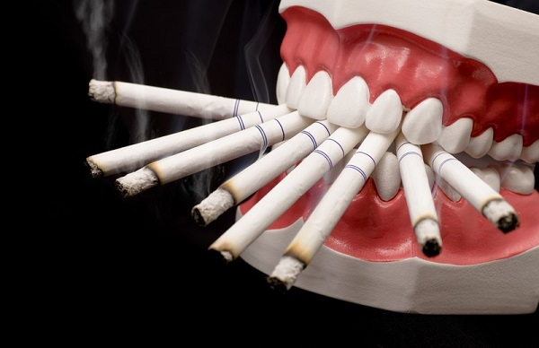 smoking-effect-avenue-dental1