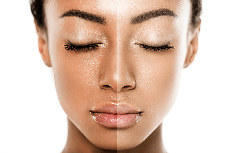 The Difference Between Brightening, Lightening And Whitening Skin Products
